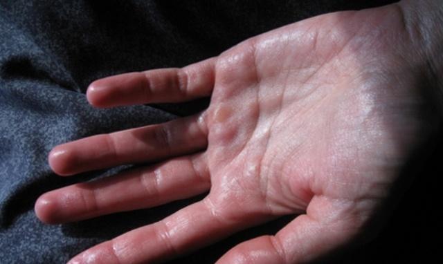 Mồ hôi tay chân ra nhiều là gì? Nguyên nhân, triệu chứng, cách chữa?
